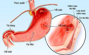 Thuốc nào gây hại dạ dày?